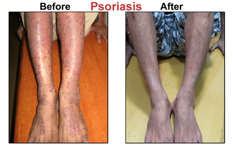 best psoriasis doctor in the philippines picture 12