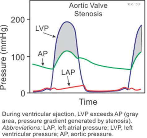 Aortic stenosis blood pressure readings picture 2