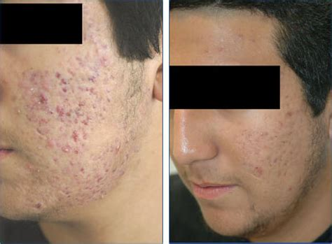 acne scar removal surgery picture 10