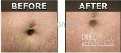 derma pen before and after stretch mark picture 1