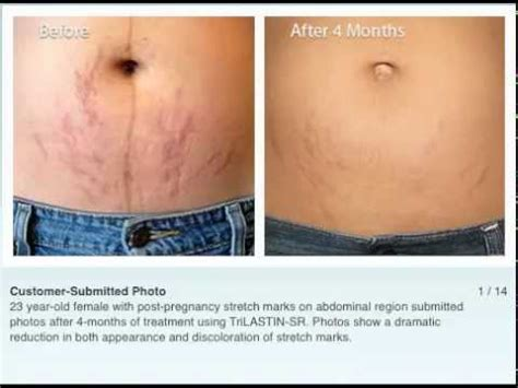 strivectin for stretch marks picture 2