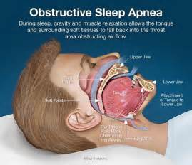 how to start a business in sleep apnea picture 1