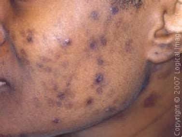 dark spots on skin picture 5