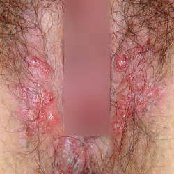 pics of herpes on vagina picture 3