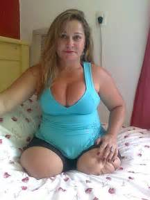 anonib amputee woman picture 2