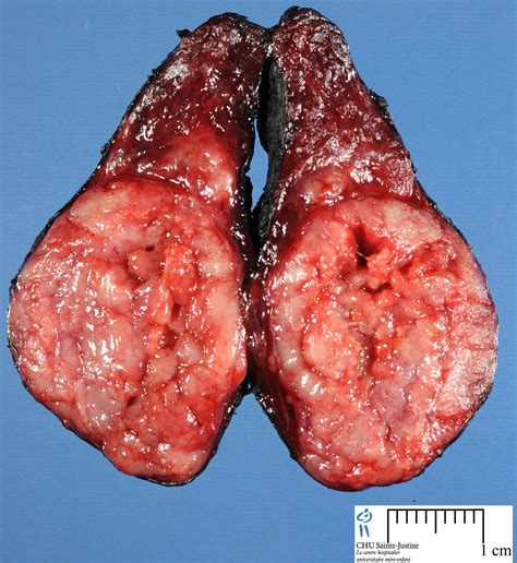 cancer of the thyroid picture 13
