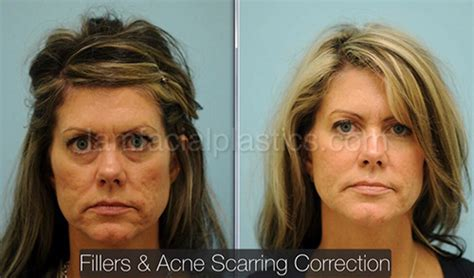 is sculptra good for acne scaring picture 8