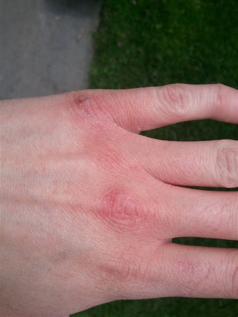 warts on fingers picture 7