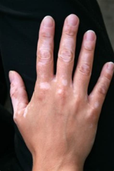 can thyroid cause vitiligo picture 9