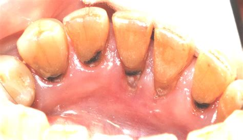 fluoride treatment for teeth picture 3