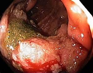 education about colon cancer picture 5