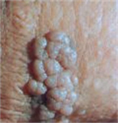warts lymphocytes picture 9
