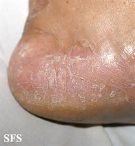 feet skin problems picture 13