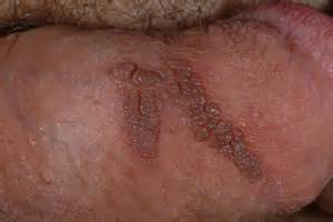 genital wart on underside of penis picture 3