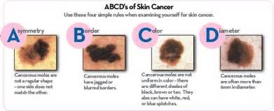 american skin cancer ociation picture 15