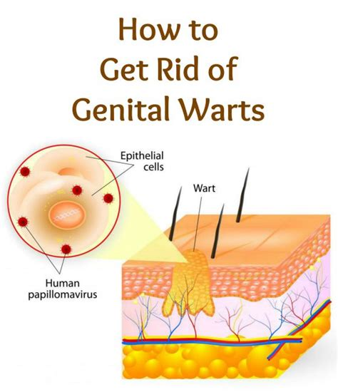 can you use home wart removers on genital picture 9