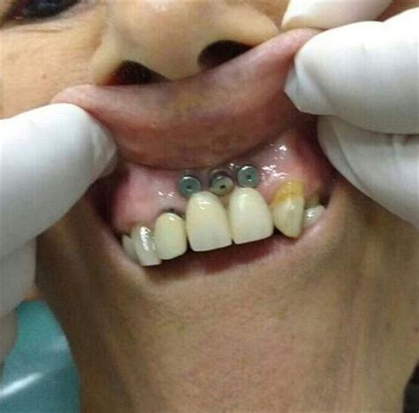 do h implants fail picture 13