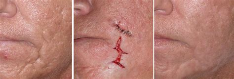 acne scar removers picture 9