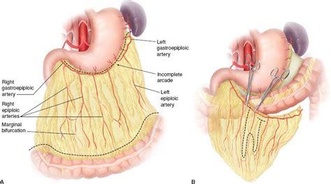 colon perforation picture 2