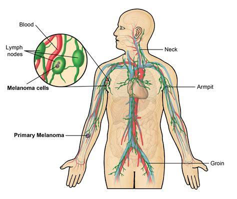 calcium in axillary lymph node and autoimmune disease picture 13