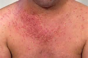 herpes genitalis picture 7