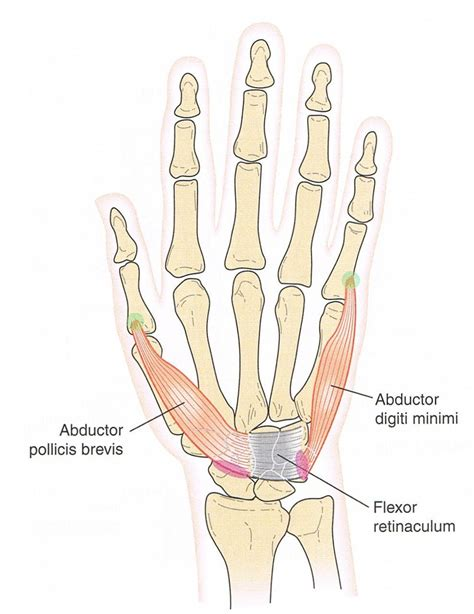 finger joint pain picture 11