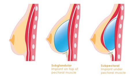 new haven breast enlargement picture 5
