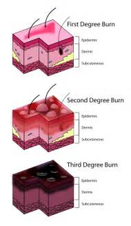 first degree burn of the skin picture 2