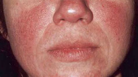 derma e tea tree oil and vitamin e and acne picture 14