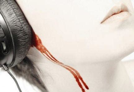 what can make a person bleed a week picture 3