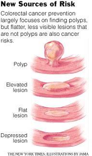 do uterine polyps make colon polyps more likely picture 10