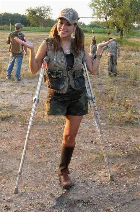 amputee women prosthetic leg picture 11
