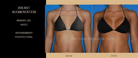 breast augmentation in chicago picture 3