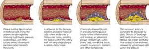 How to control high blood pressure picture 14