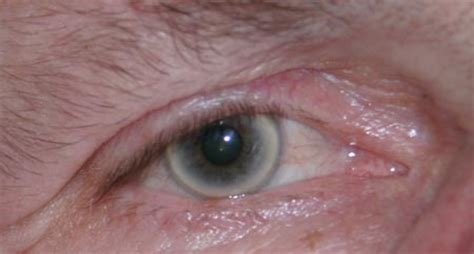arcus senilis treatment homeopathic picture 14