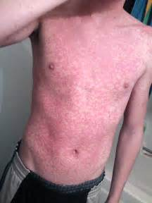 hives and fever picture 7