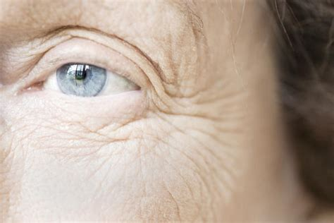 can estradiol cream help wrinkles picture 13