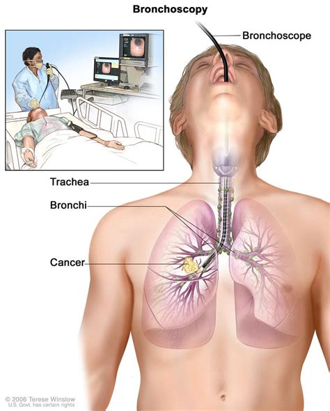 Prostate cancer that spread to lymph nodes picture 10