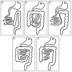 nonrotation of bowel and small mesenteric artery picture 13
