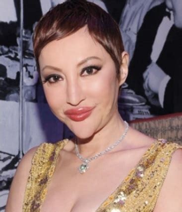 women aging plastic surgery hong kong picture 15
