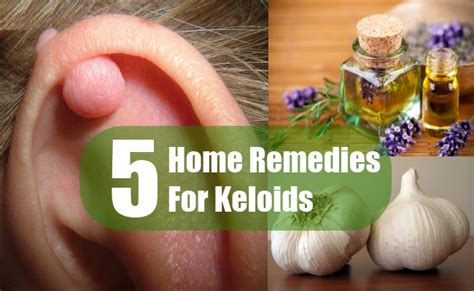 supplements for keloid picture 7