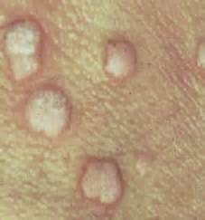 pictures of female genital warts picture 2