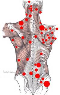 muscle pain in upper back picture 6