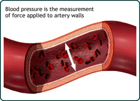 elevated blood pressure picture 13