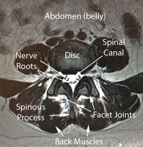 future techniques of facet joint imaging picture 7