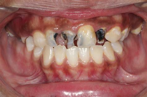 cavaties teeth picture 1