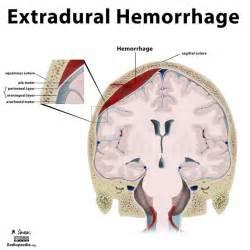 hoodia pseudotumor cerebri picture 2