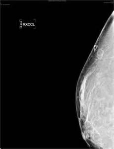 herbal medicine ofdr bilquis sheik for breast enlargment picture 25