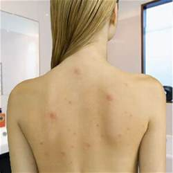 back and shoulder acne picture 6