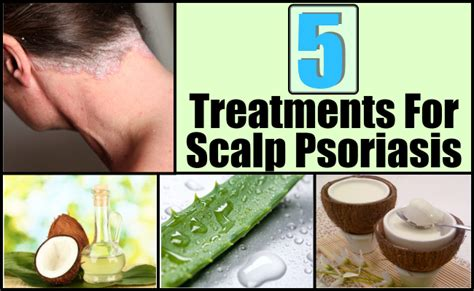 homemade hair loss treatment picture 3